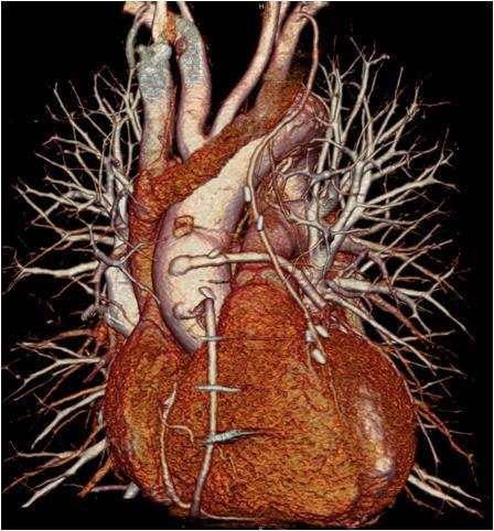 Arteries and Veins Using Coronary CT Angiography